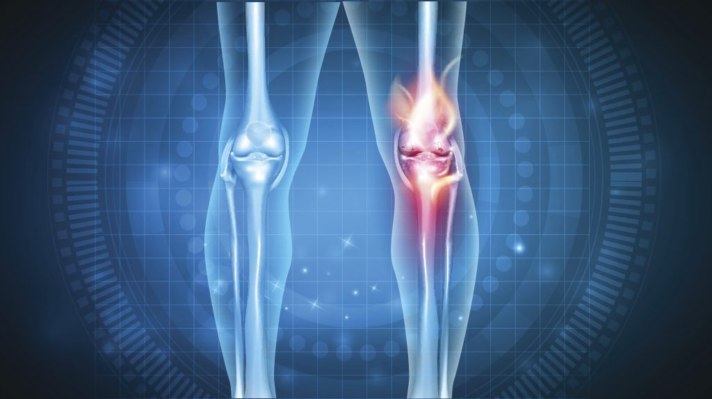 What are the condition and injuries of the knees?